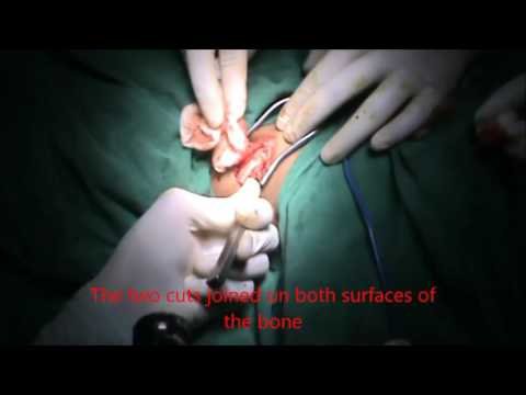 Iliac crest Graft Harvesting