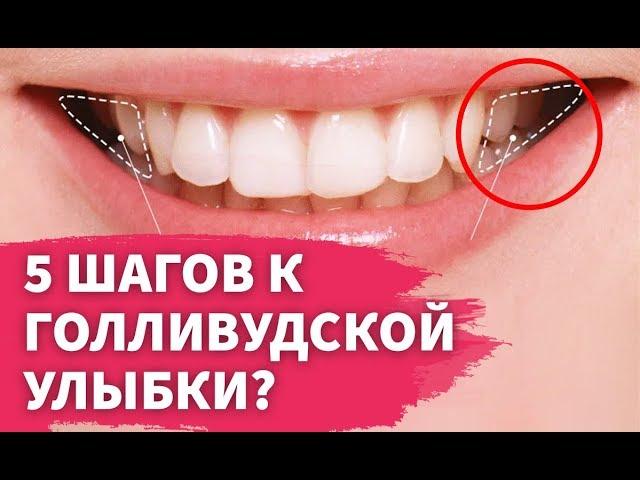 5 секретов голливудской улыбки