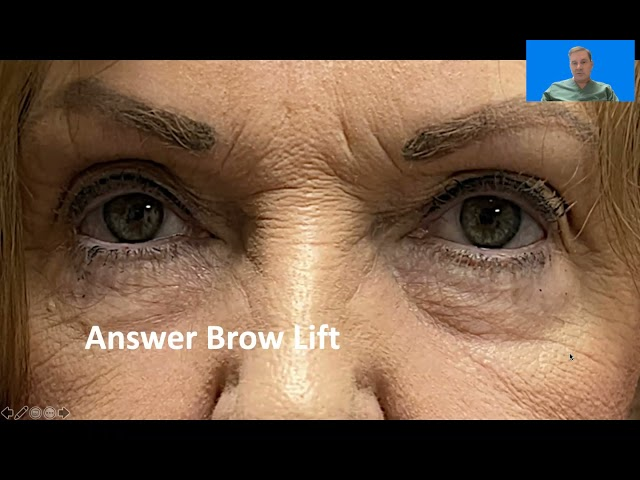 Blepharoplasty vs Brow lift with Dr. John Burroughs from Springs Aesthetics in Colorado Springs
