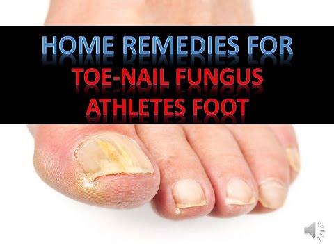 Home Remedies For Toenail Fungus / Athletes Foot