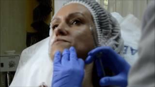Заполнение носогубной складки препаратом Сурджидерм
