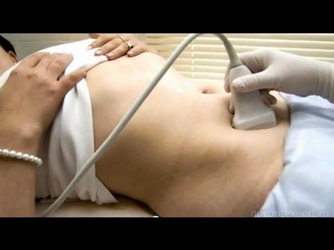 Как лечить поликистоз яичников? Говорит ЭКСПЕРТ.