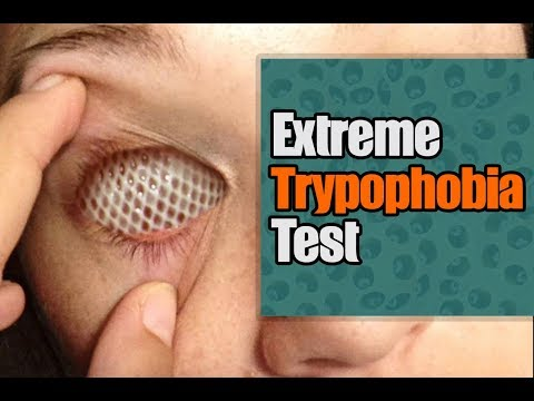 The Ultimate Trypophobia Test Good Luck Skachat S 3gp Mp4 Mp3 Flv
