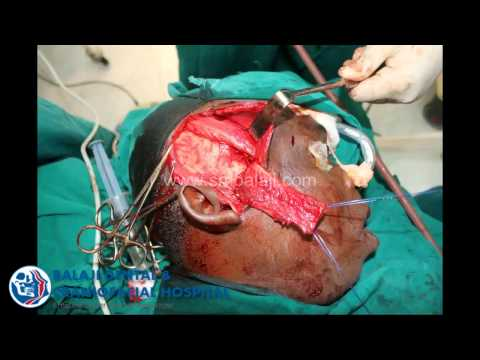TMJ ankylosis-Gap arthroplasty-temporalis(Lock jaw).avi