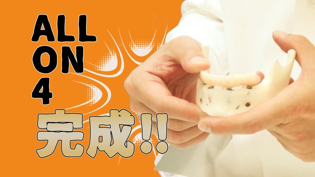 ALL-on-4(オールオンフォー)人工の歯の取り付けて完成!!パート4