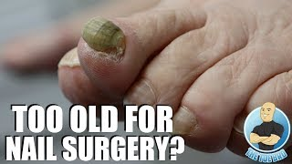 80 YEAR OLD WOMAN WANTS RAM'S HORN TOENAIL GONE FOR GOOD!!!