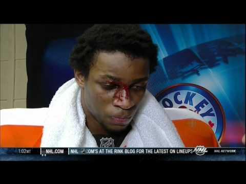 Wayne Simmonds bloody interview. Ottawa Senators vs Philadelphia Flyers 31 March 2012. NHL Hockey