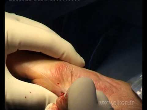 Minimally Invasive Bunion Hallux Valgus Surgery