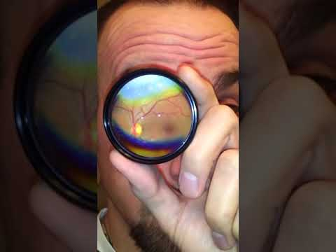 How to Do Your Own Fundus Exam