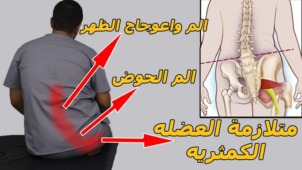 متلازنة العضله الكمثريه (عرق النسا الكاذب)/سببين خفين وراء متلازمة العضله الكمثريه والم الظهر والحوض