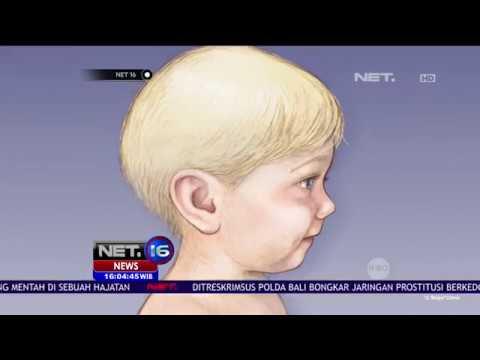 Ini Penjelasan Ilmiah Mengenai Meningitis - NET16