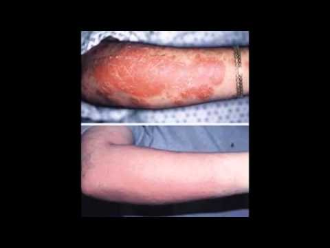 Guttate Psoriasis Foods To Avoid says: 2