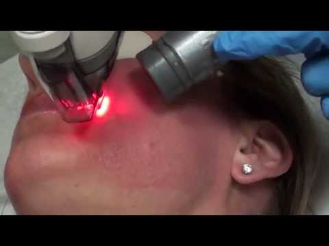 What will I look like after a Fraxel laser treatment?
