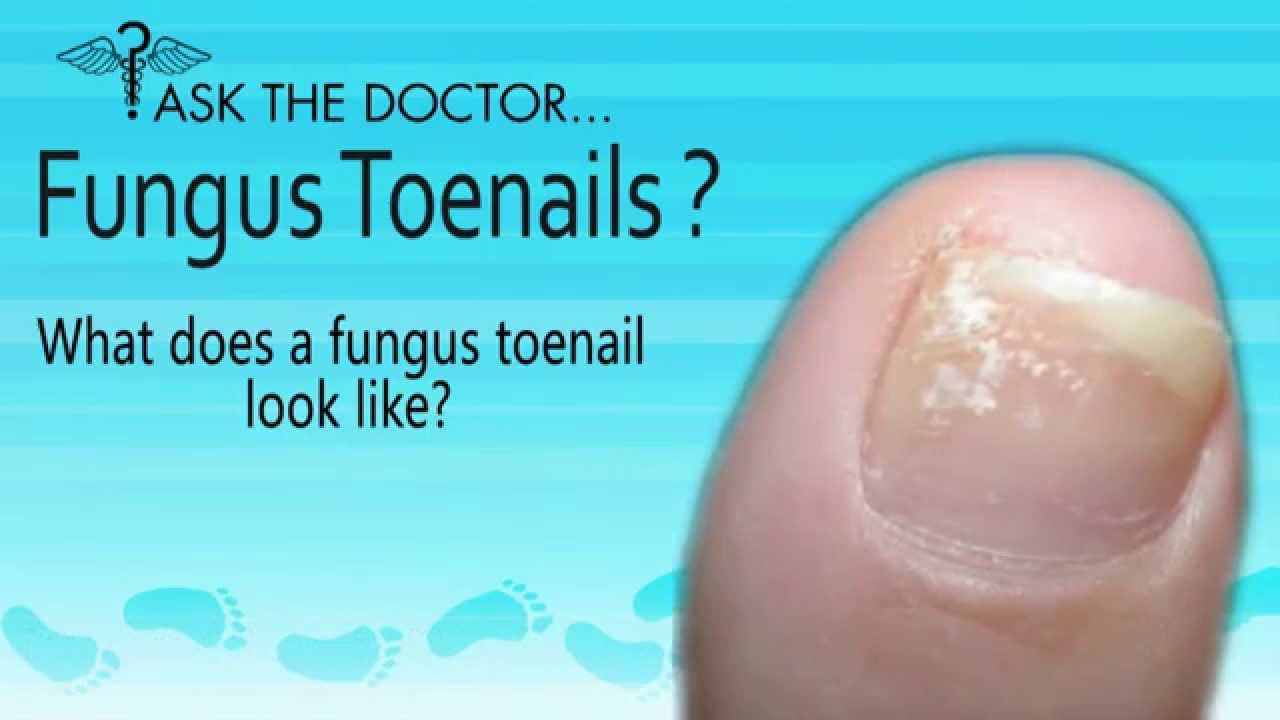 What does a Fungus Toenails Look Like? West Chester, Newtown Square ...