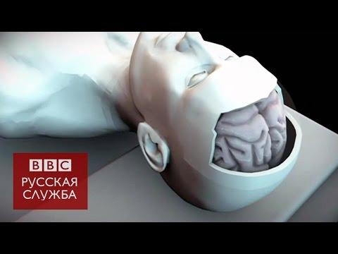 Опухоль головного мозга: симптомы и признаки - полная