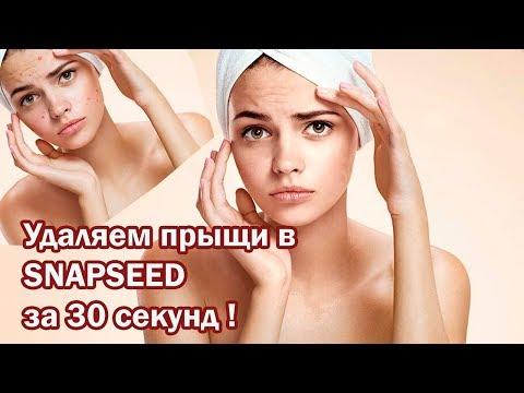 Как убрать прыщи в SNAPSEED? Обработка кожи лица на телефоне.