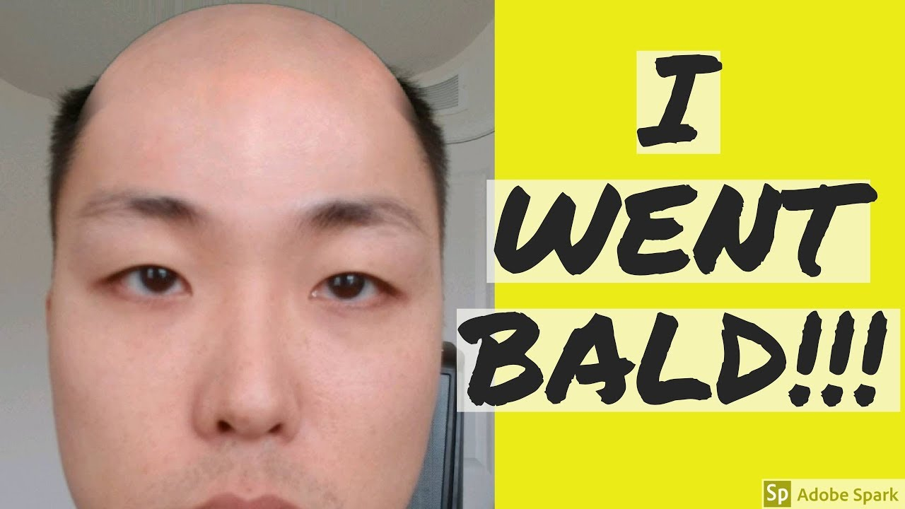 all my hair is gone i went bald youtube