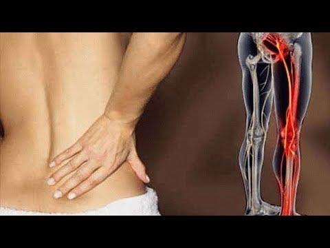 Боль в пояснице и защемление седалищного нерва лечение. Ишиас. Невралгия