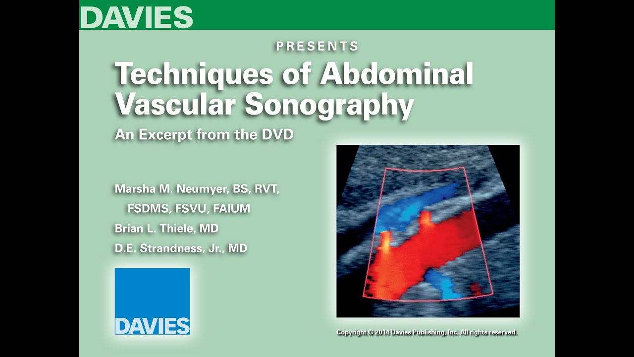 Techniques Of Abdominal Vascular Sonography - 01