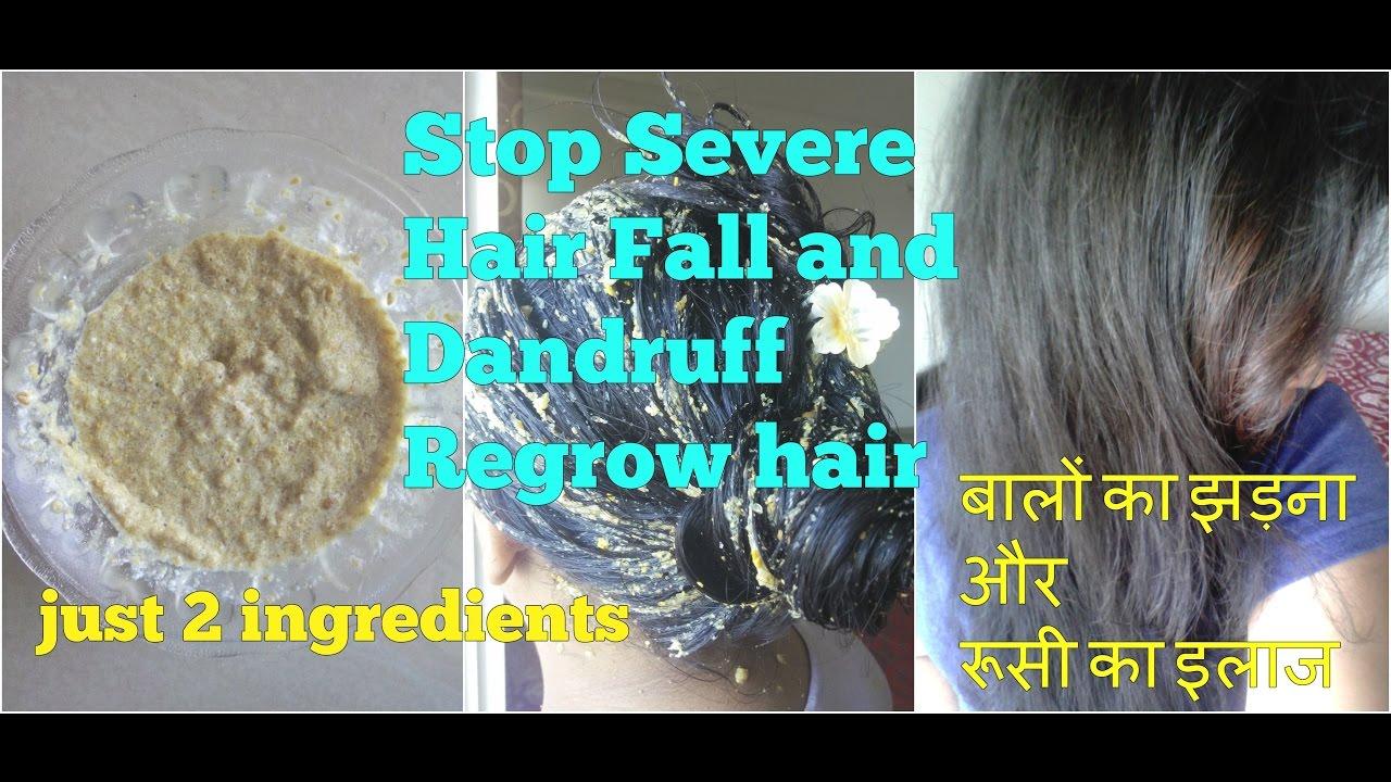 STOP SEVERE HAIR FALL DANDRUFF, FENUGREEK OR METHI SEEDS MASK FOR HAIR  REGROWTH in HINDI