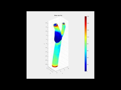 QuickerSim CFD Toolbox for MATLAB® - Blood Flow Modelling