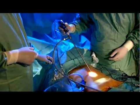 Prostatectomie Radicale Par Voie Laparoscopique Extra