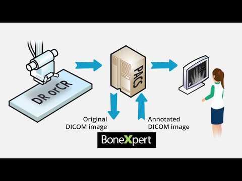 Bone age automated with BoneXpert AI - precise and easy