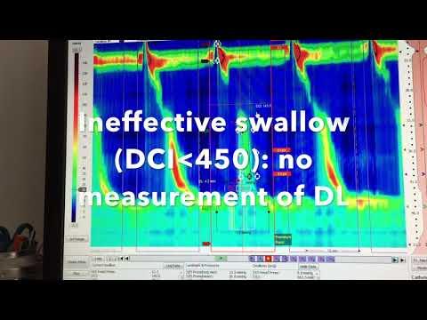 Analysis of Esophageal High Resolution Manometry ESNM Teaching Video