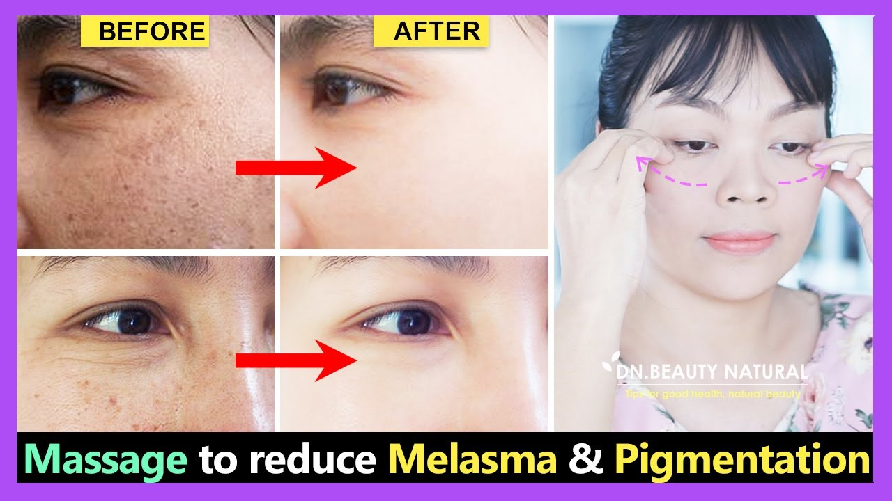 Massage to reduce Hyperpigmentation, Melasma, Freckles, Uneven skin tone to fade quickly.