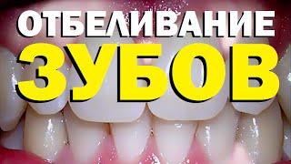 Галилео. Отбеливание зубов(455 от 30.10.2009 Как устроены наши зубы? Почему они желтеют? Методы отбеливания зубов. Редактор сюжета: Дмитрий..., 2016-01-28T08:00:00.000Z)