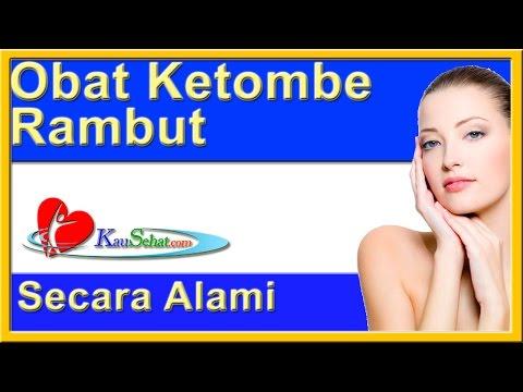 obat-ketombe---video-kesehatan-hidup-wanita-indonesia