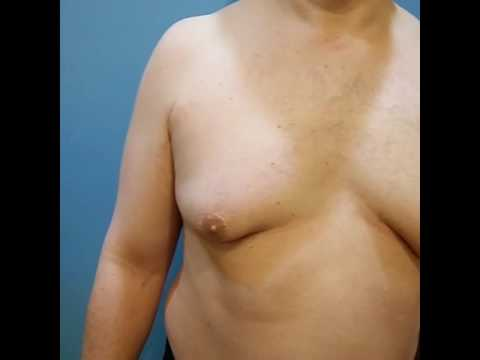 """Assurance"" of Extraordinary Results, Gynecomastia Surgery! by Dr. Lebowitz, Long Island, New York."