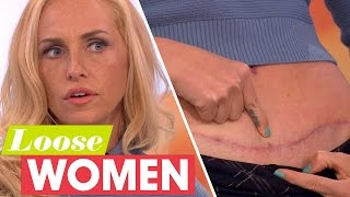 Josie Gibson Reveals Her Surgery Scars | Loose Women