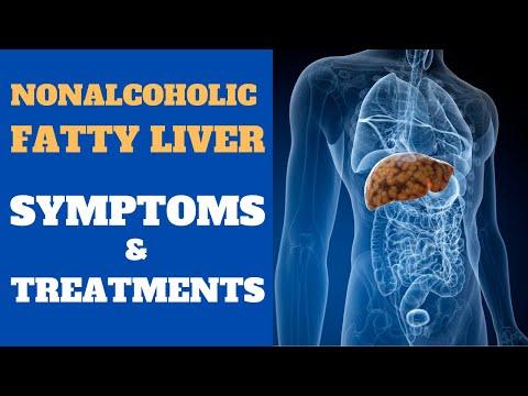 Nonalcoholic Fatty Liver