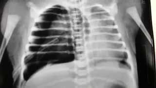 Pneumothorax in Newborn
