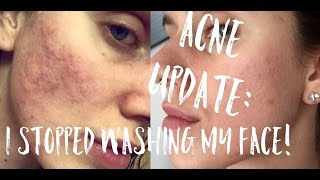 🙊 ACNE UPDATE: I Stopped Washing My Face!!!! | Cassandra Bankson