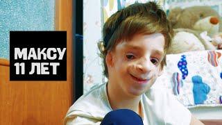 Родная мать бросила, приемная мама считает его очень красивым. У Максима синдром Тричера Коллинза.