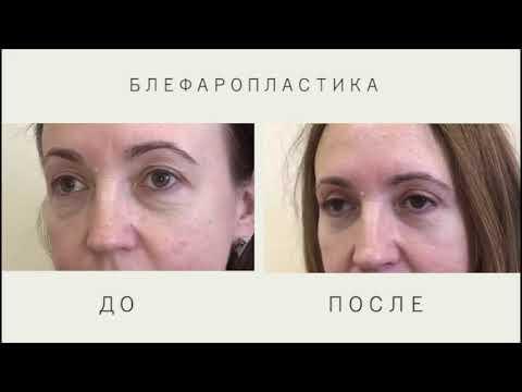 Блефаропластика  до и после операции   Рубцы спустя 2 месяца  3