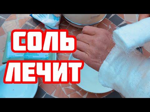 Солевые повязки от 100 болезней