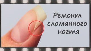 Как отремонтировать сломанный ноготь.  Ремонт натурального ногтя шелком