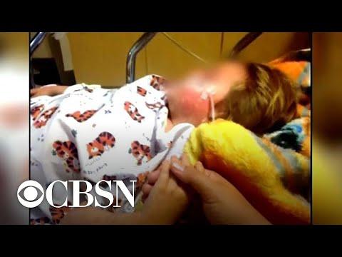 Measles cases top 700 in the worst U.S. outbreak in 25 years