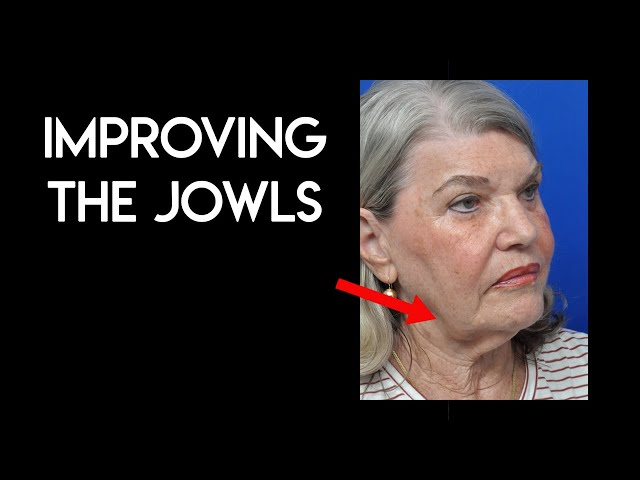 Improving the Jowls