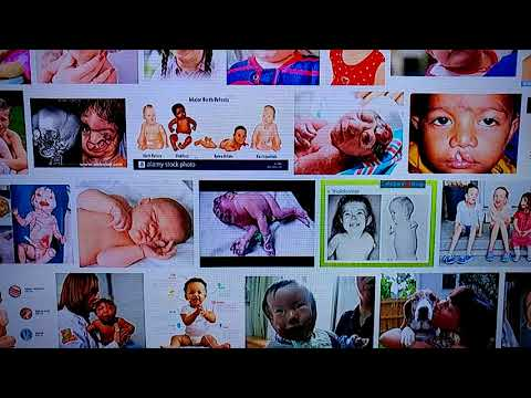 GOOGLE IMAGE SEARCH ON BIRTH DEFECTS