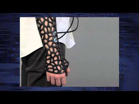 3D-Printed Cast Helps Speed Bone Recovery