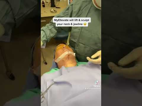 Neck Lipo and MyEllevate by Dr. Burroughs from Springs Aesthetics in Colorado Springs