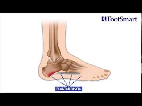 Plantar Fasciitis (Heel Pain) Symptoms, Prevention and Treatment