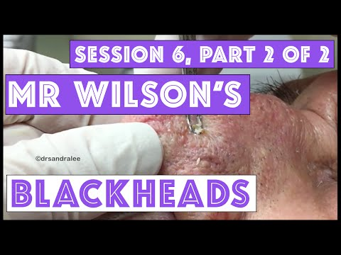 Mr Wilson's Blackhead Extractions: Session 6, Part 2 of 2