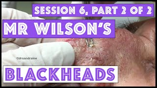 Mr Wilson's Blackhead Extractions: Session 6, Part 2 of 2 thumbnail