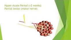Nerve damage and repair