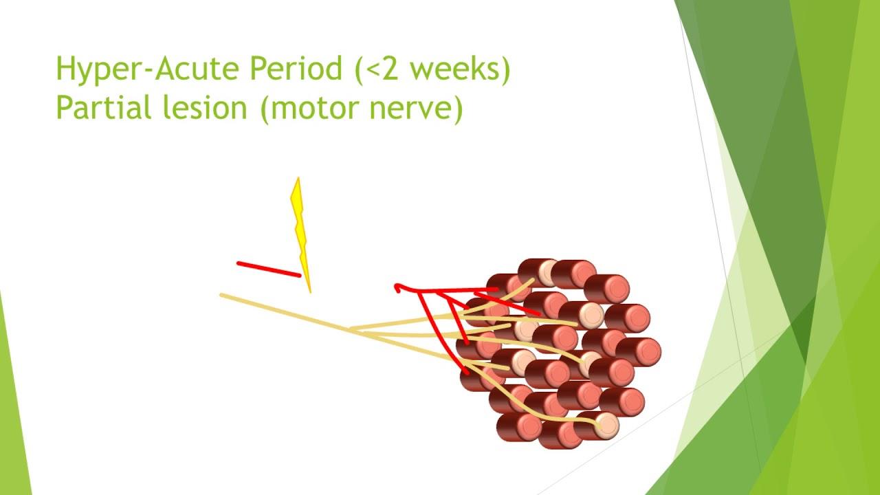 Nerve Injury Rehabilitation - Physiopedia